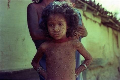 Experts debate destroying last smallpox viruses - Health ...