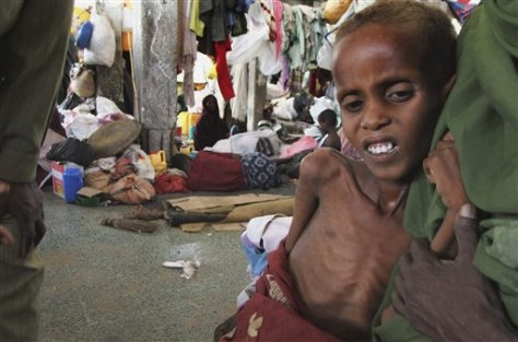 Image: Malnourished child from southern Somalia