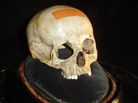 Image: Skull linked to Mozart
