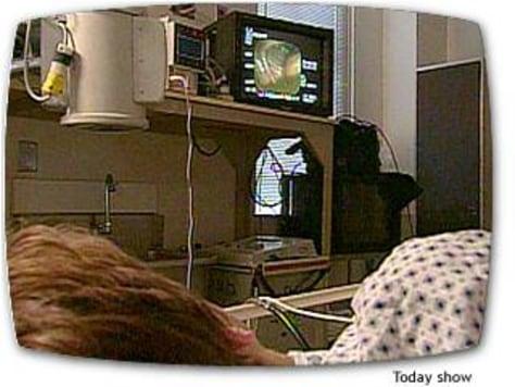 Image: Katie Couric's colonoscopy