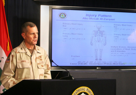 IMAGE: SURGEON EXPLAINS AL-ZARQAWI INJURIES