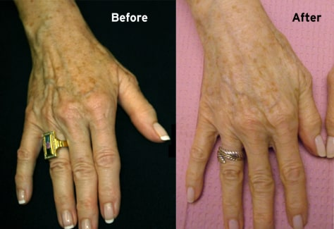 Image: Hand lift, before and after