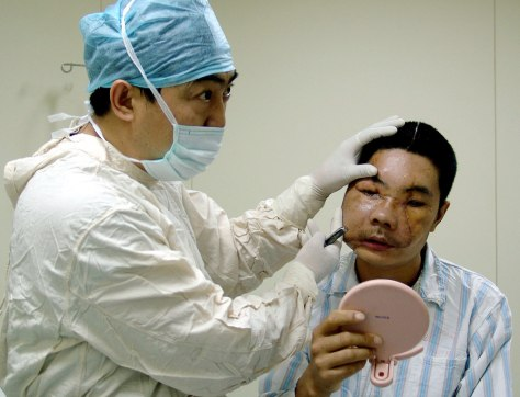 Image: Li Guoxing, a Chinese man who received world's second partial face transplant