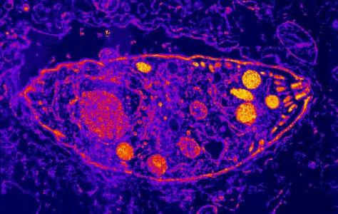 Image: Toxoplasma gondii