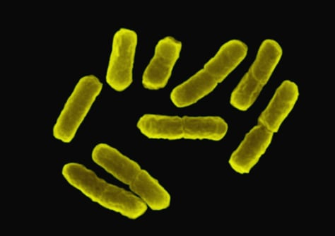 Image: Workhorse E. coli bacteria are shown.