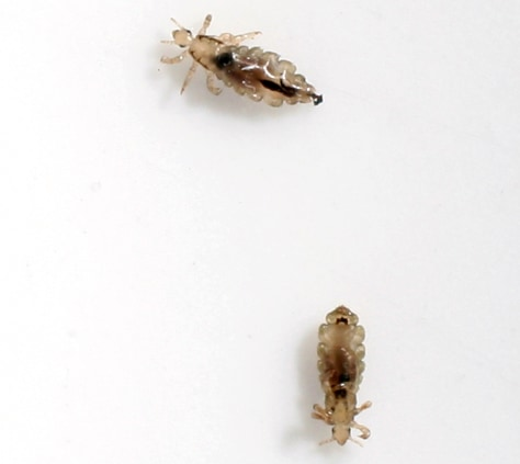 Image: Common Head Lice