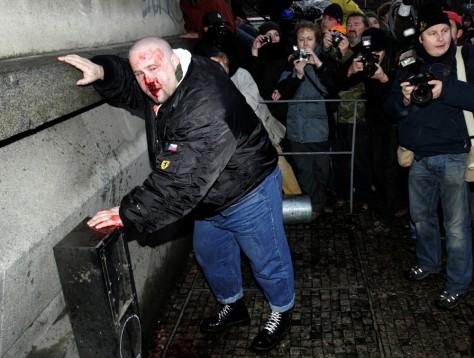 Image: Injured neo-Nazi