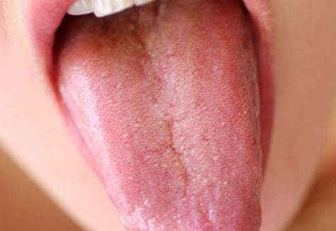 Image: Tongue