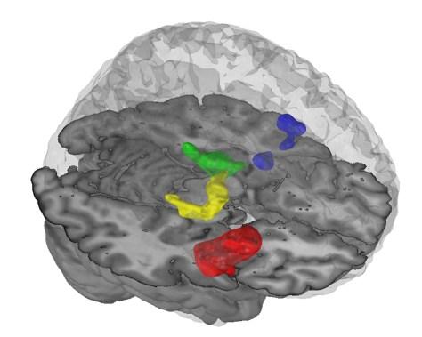 Image: Brain cutaway