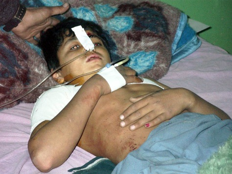 "IMAGE: Afghan boy wounded in ""mistake"" bombing."