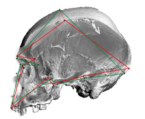 Image: Skull comparison