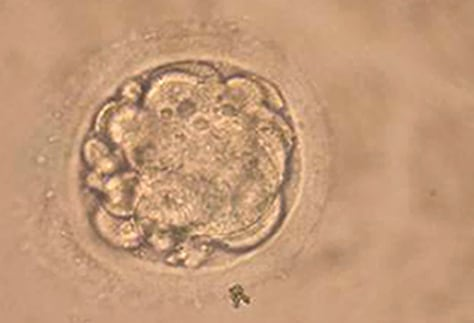 South Korean Researchers Clone Human Embryo