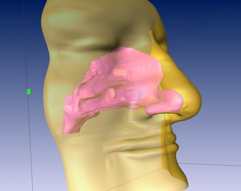 Image: Nasal cavity