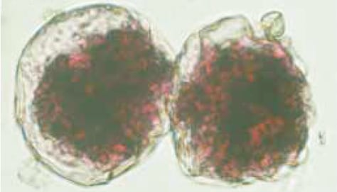 Image: Foraminifera