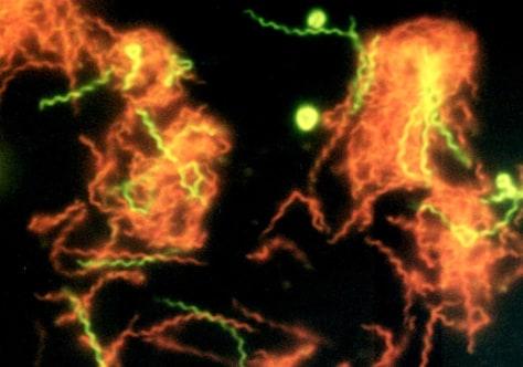 Image: Spirochaeta americana microbes