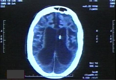 Terri Schiavo's 2002 CT scan - msnbc - The Abrams Report