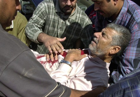 Image: Wounded Iraqi man.