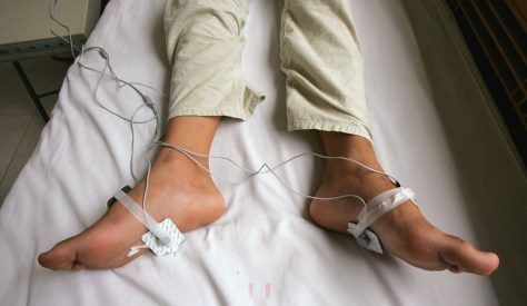 12-year-old boy receives electric shock treatment