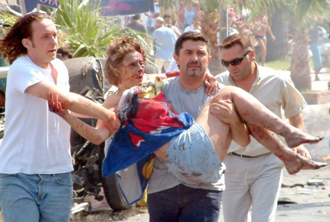 An injured woman is helped after explosion in Turkish resort town of Kusadasi