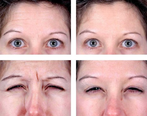 Young and using Botox to stay that way - Health - Skin and ...