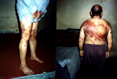 Image: Iraqi detainee