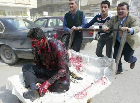 Image: Wounded man in Baghdad