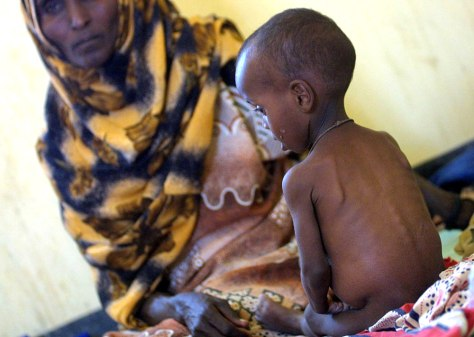 Image: Malnourished boy