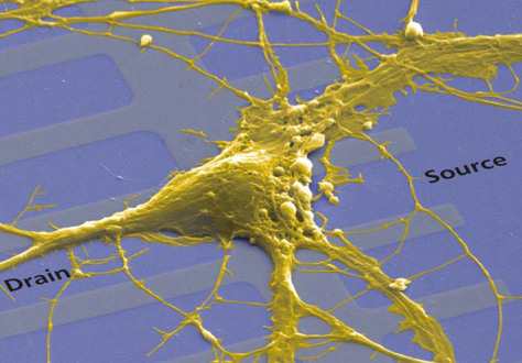 Image: Rat neuron