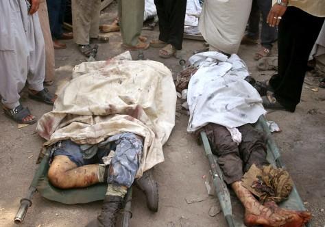 Image: Bomb victims.