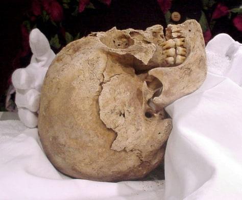 Image: St. Croix autopsy