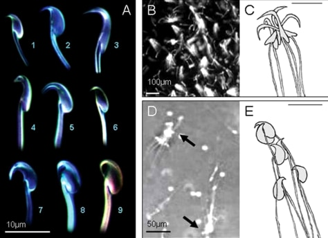 Image: Rodent sperm