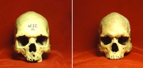 Image: Skulls from Nigeria (left) and Australia