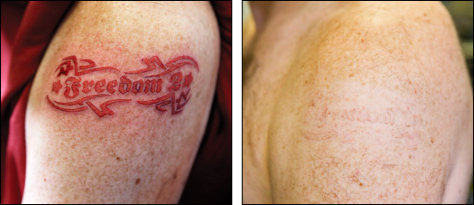 New tattoo ink may avoid painful removal health skin for How painful is tattoo removal