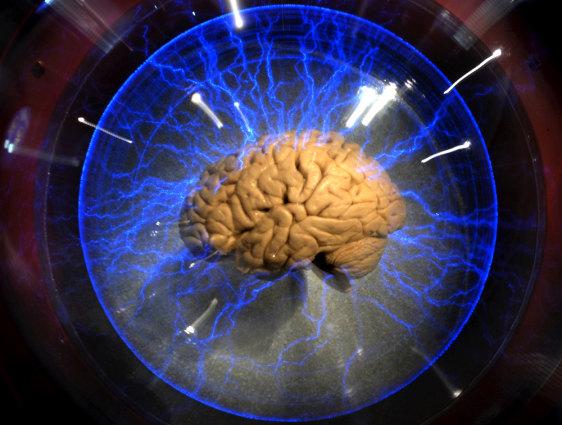 Image: Brain