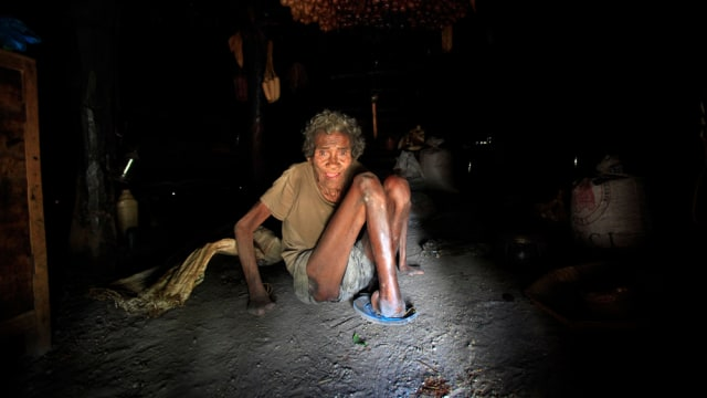 Image: Former leprosy patient Adelino Quelo sits inside his hut in Malelat, West Oe-cusse.