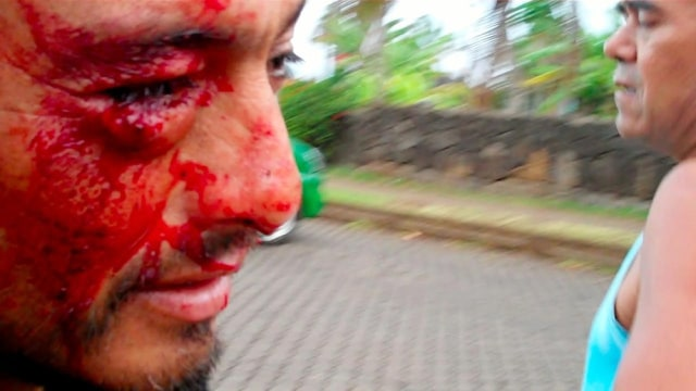 Image: Man bleeding from eye