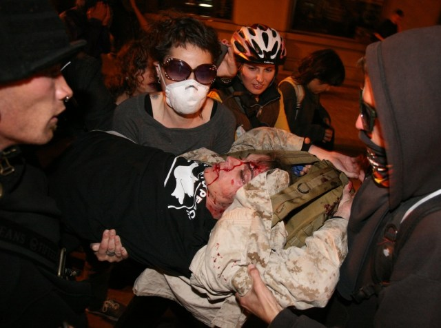 Image: Scott Olsen injured by a tear gas canister