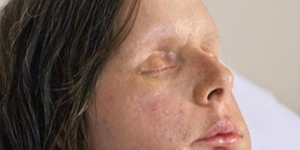 Charla Nash's new face revealed