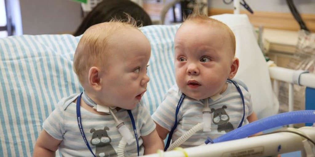 Formerly Conjoined Texas Twins To Go Home