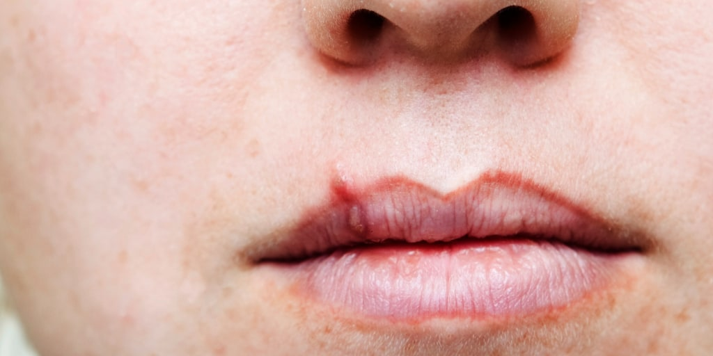 Herpes do guys get Signs of