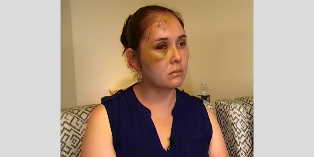 N.J. mom allegedly beaten up by 13-year-old after she complained about boys bullying her son