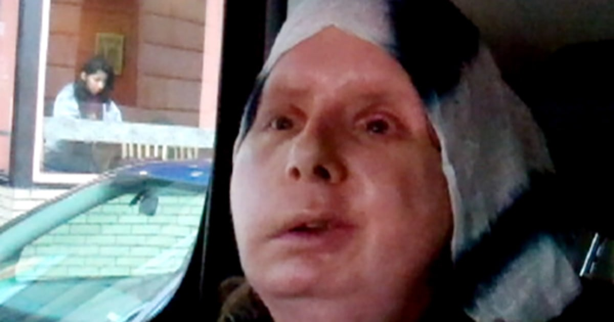 Chimp attack victim: 'I don't think about my face'