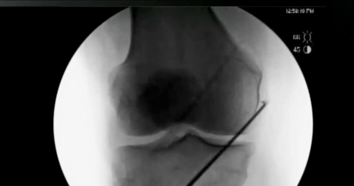 FDA Approves New Treatment For Chronic Knee Pain