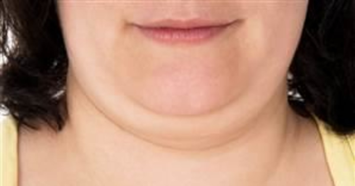 FDA Approves Double-Chin Shot