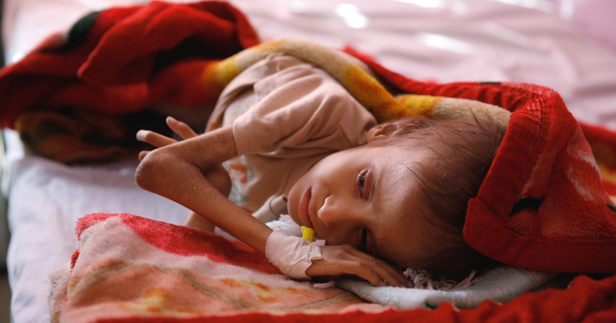 Yemeni Ren Suffer From Life Threatening Malnutrition