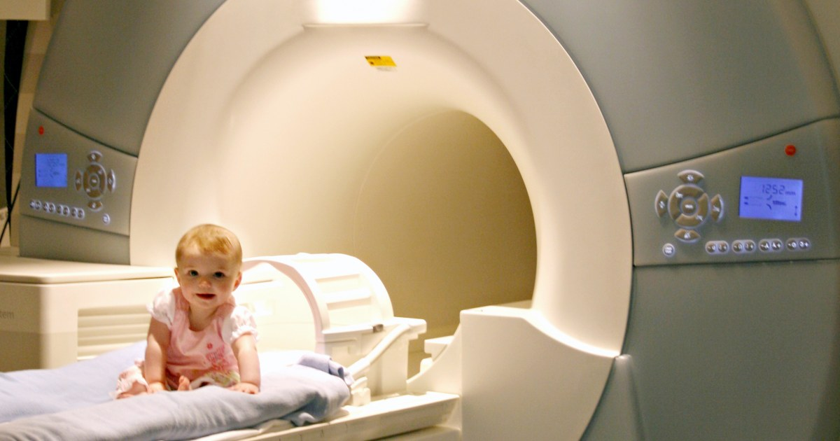 Mris Predict Which High Risk Babies >> Brain Scans Detect Signs Of Autism In High Risk Babies Before Age 1