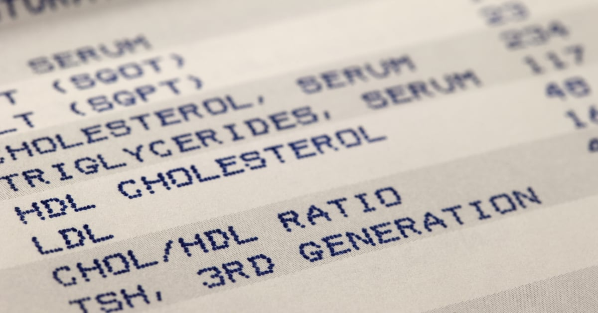 Good' HDL cholesterol may not protect all women