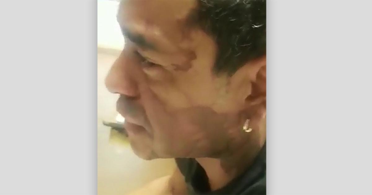 Milwaukee Mensch leidet Säure brennt auf sein Gesicht den angeblichen rassistischen Angriff