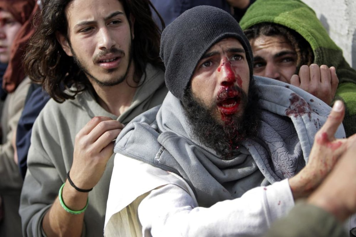 Image: Injured Israeli settlers appeal to Palestinians not to hit them while they are detained by Palestinian villagers