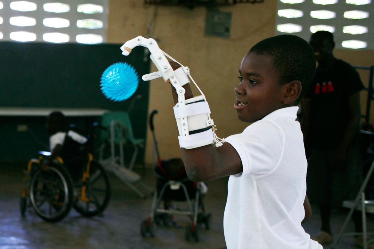 Image: Stevenson Joseph practices using a 3D-printed prosthetic hand in Santo